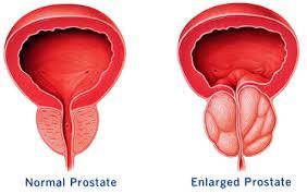 sakit prostat